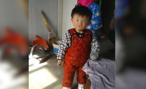 兩歲女童突抽搐昏睡,父親懷疑狂犬病發