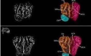 《自然》这次又玩大了!耶鲁大学神经学家令猪脑死而复活?