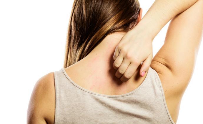 問答丨越抓越癢,壓力大還會得皮炎?