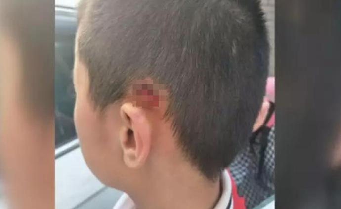 太原一民办校11岁男生遭男老师暴力推甩,脖颈处和耳朵受伤