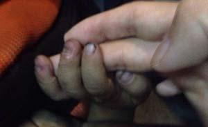 广东佛山三岁幼童被生父拔掉手指甲,上海作家陈岚介入被殴