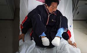 看不起病安徽男子自断双脚,家属否认自残动机为入院