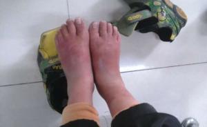 """又见虐童:安徽女孩遭母亲殴打""""头部渗血"""",医生称有累积伤"""