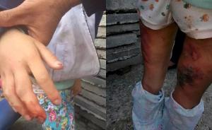 男子虐打亲生女儿被湖北十堰警方拘留,承认此前还打过两次