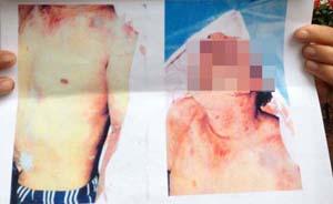 云南男子被秘密羁押后漂尸鱼塘,警方称伤痕是鱼吃的