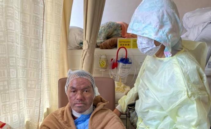 被香港暴徒燒傷的李伯終于可下床走路了,李太稱植皮部分成功