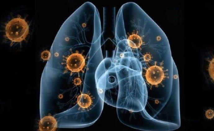 日本新型冠状病毒感染的肺炎新增2例,其中一人无武汉旅行史