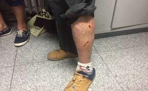 北京咬人白狗尚未找到,疾控中心透露一晚接诊20名被咬者