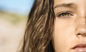 黄褐斑缺乏特效疗法,中医治斑须以内养外、内外兼治