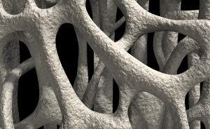 骨质疏松常被忽视,高蛋白饮食易致钙流失