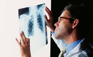 体检发现肺部磨玻璃结节别惊慌,定期随访筛查肺癌