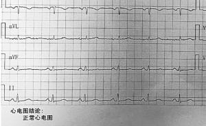 杭州67岁换心人录下心跳声转交捐献者家属:我会替她好好活