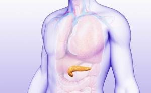 胰腺癌早期难发现,高危人群需查哪些项目