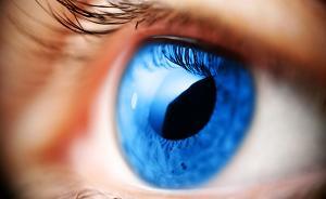 视野被偷走,元凶或是垂体瘤