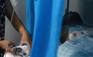 四川13岁少年为抢手机下重手,泼汽油烧伤年轻女教师